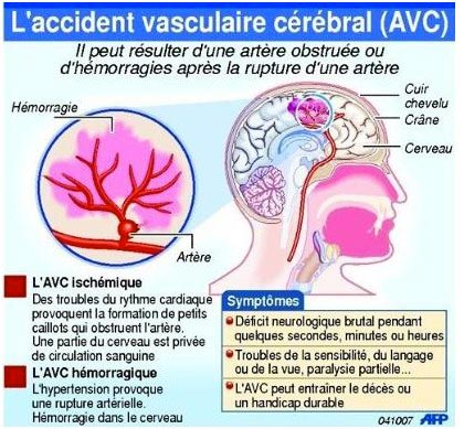 Accident vasculaire cérébral, Santé-Sénégal.com - le guide..